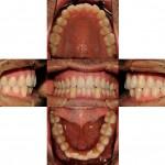 Ortodonzia linguale post trattamento