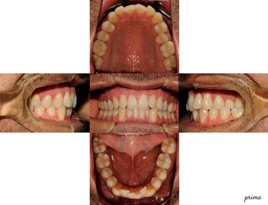 Ortodonzia linguale attacchi ortodontici