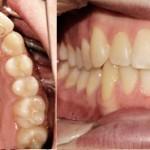 Ortodonzia linguale con retainers attivi - prima