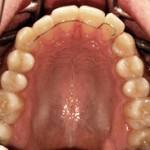 ortodonzia_linguale_retainer1_small
