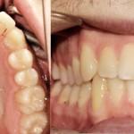 Ortodonzia linguale con retainers attivi durante