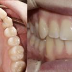 Ortodonzia linguale con retainers attivi