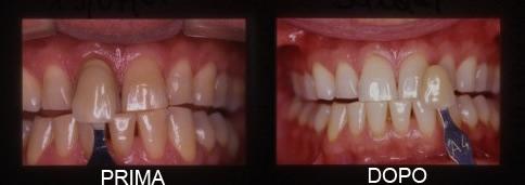 Studio Casadei Testi Sbiancamento dei denti