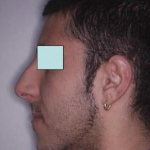 Tecnica Ortodontica con Arco Multiloop